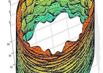 Hemodynamics in the microcirculation