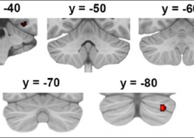 The future of memory: Neuroimaging memory and imagination with functional MRI
