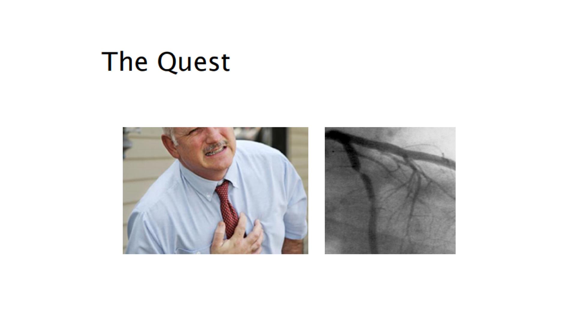 4- Personalising heart disease treatment-1kodj9t