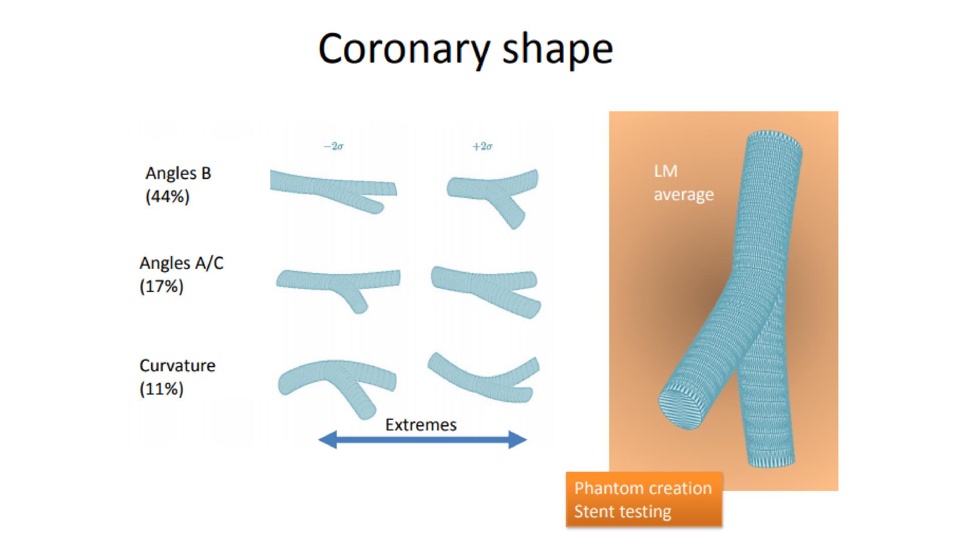 5 - How coronary bifurcation affects flow-209p9hy
