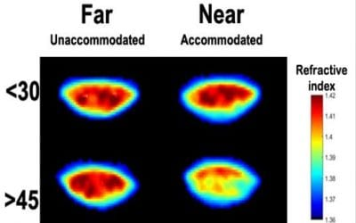 The presbyopia study: using clinical optometry and MRI to study ageing and accommodation in the lens