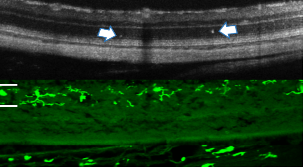 Diabetic retinopathy: early clinical signs and intervention using a Connexin43 modulator