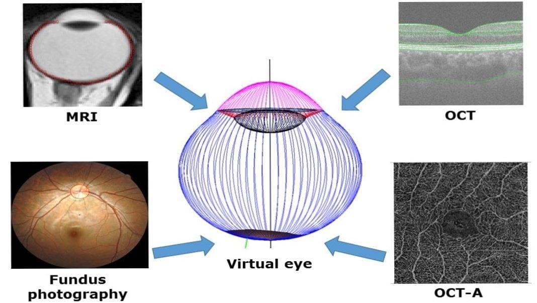 The virtual eye
