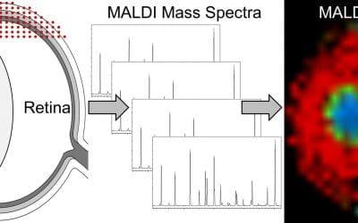 MALDI imaging of the eye
