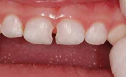 A close up image of two front teeth with decay visible in the space between them.