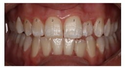 Close up of teeth with mild fluorosis visible as white patches.