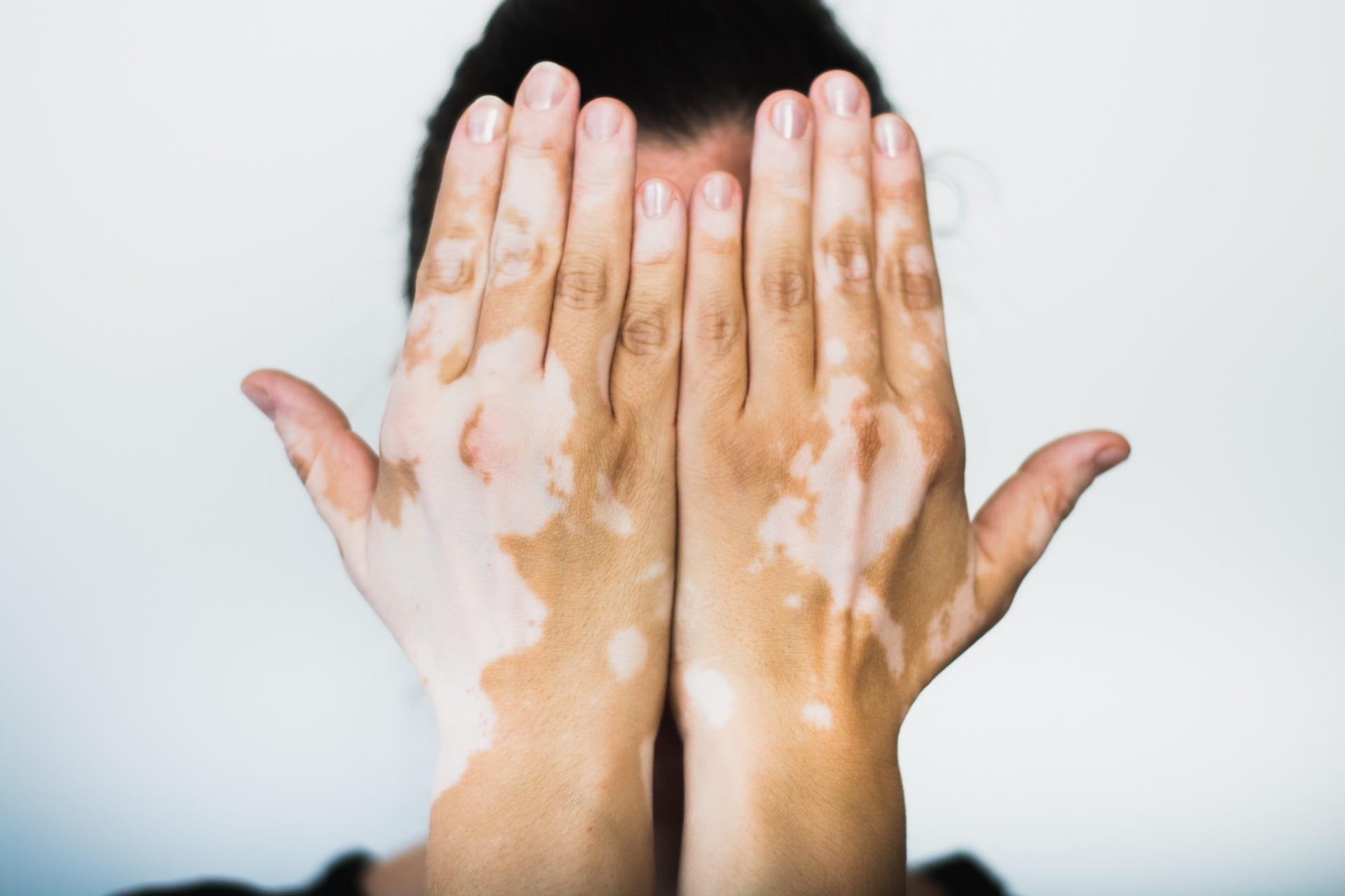 Vitiligo Proving Beauty Is Not Just Skin Deep Scientific Scribbles