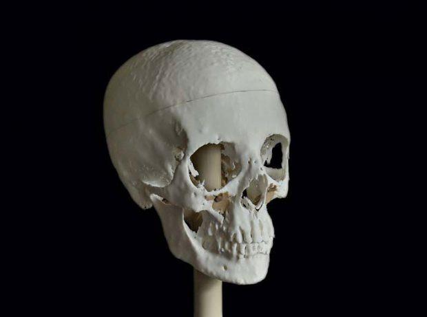 Meritamun's skull