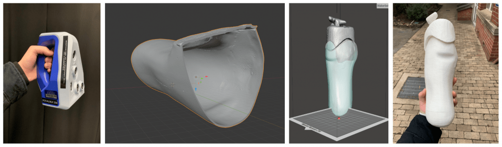 Using a 3D Scanner (left: Artec Space Spider) to create a 3D model of the residual limb; design of a check socket (center images) and 3D-print of mold (right) for the final lamination process.